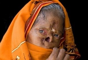 mujer-acido-india
