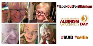 Discapacidad Visual: La ONU celebra hoy el Día Internacional del Albinismo